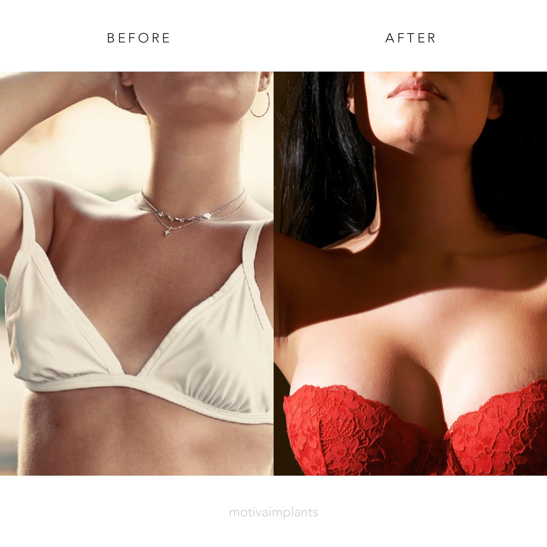 prima e dopo Protesi Ergonomix